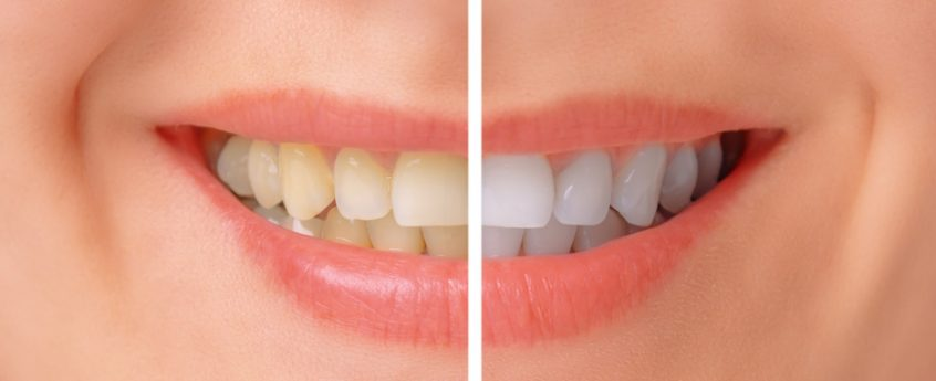 teeth-whitening-rosanna